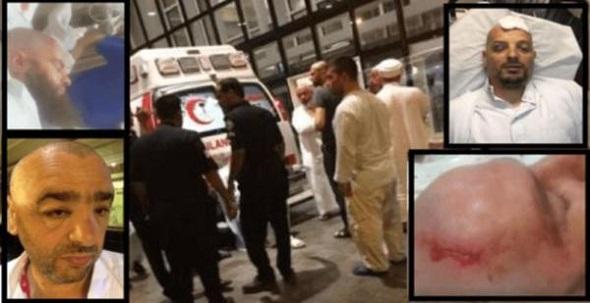 Türk cemaatleri Umre'de birbirine girdi... Çok sayıda kişi yaralandı